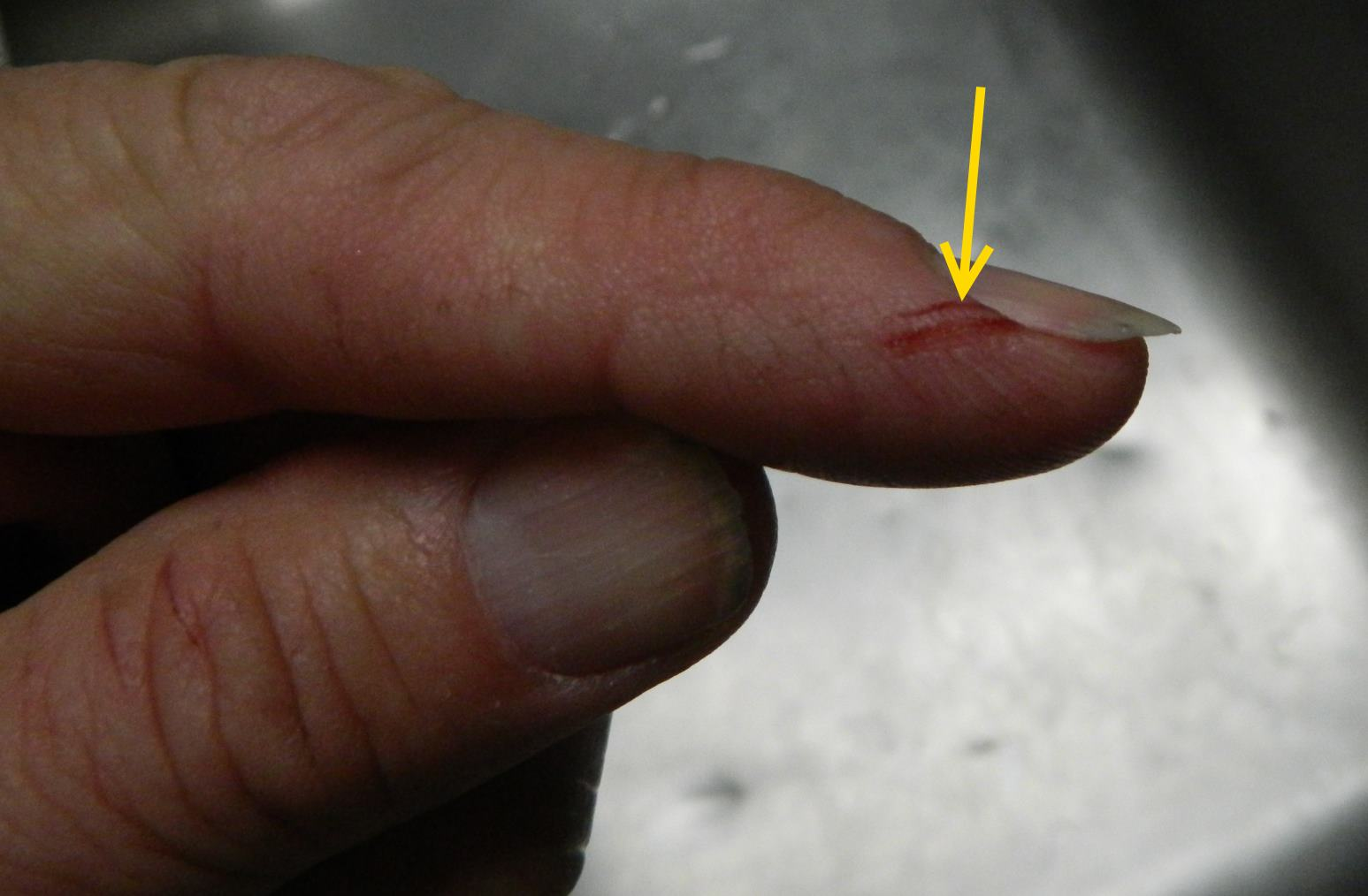 index finger cut.jpg
